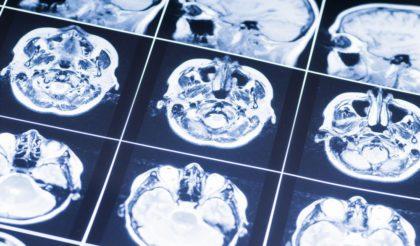 【開催終了】第4回東海脳神経IVRカンファレンスのご案内
