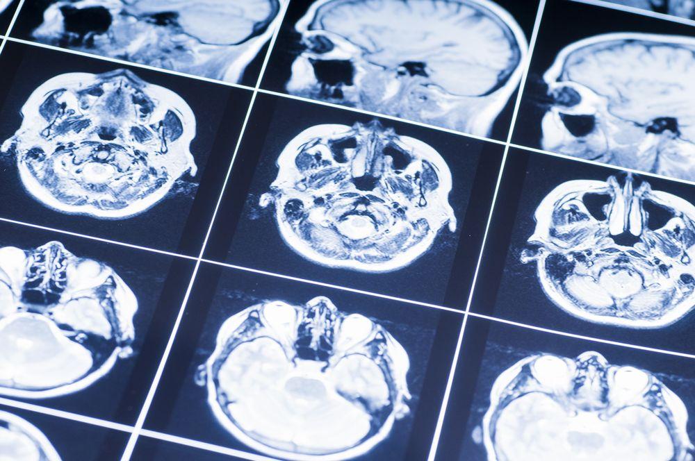 脳血管内治療専門医取得コース